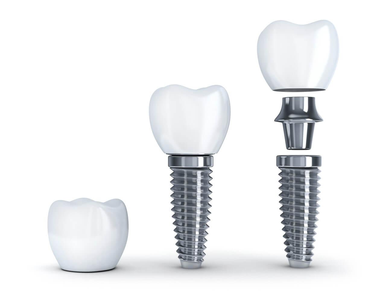 Schaubild zur Veranschaulichung des Aufbaus eines Zahnimplantates