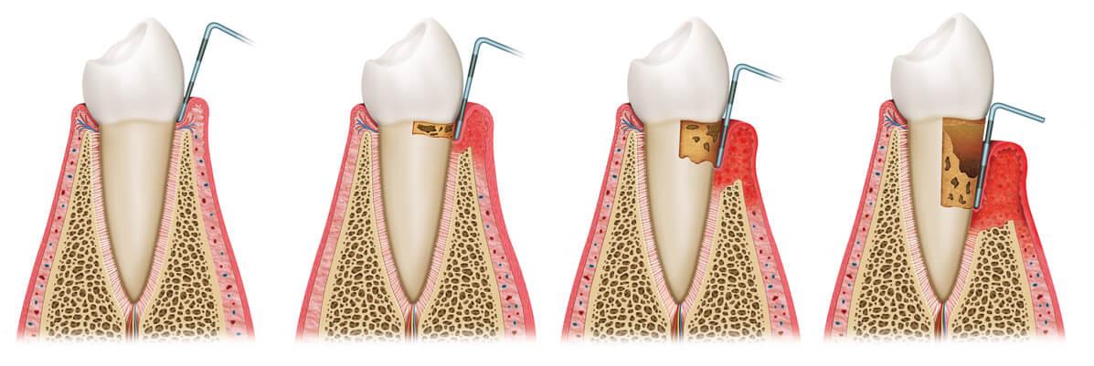Schaubild zur Veranschaulichung einer Parodontitis-Behandlung