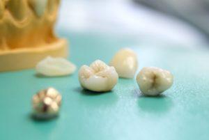 Abbildung verschiedener Möglichkeiten für einen Zahnersatz: Kronen, Brücken und Implantate